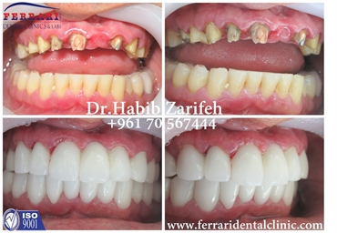 SmileJustTheWayYouFeel with Dr Habib Zarifeh