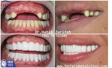 Hollywood Smile Lebanon with Dr Habib Zarifeh