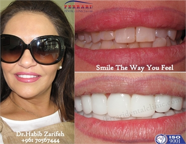 Hollywood smile in Lebanon by Dr.Habib Zarifeh