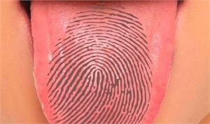Tongue print, like fingerprints, is unique for every person