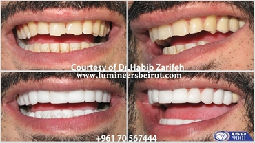 Hollywood smile in Lebanon by Dr Habib Zarifeh