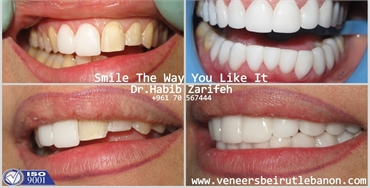 Get back your Smile with the number one Hollywood Smile dentist in Beirut Lebanon Dr Habib Zarifeh