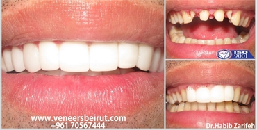 Get back your Smile with the number one Hollywood Smile dentist in Beirut Lebanon Dr.Habib Zarifeh
