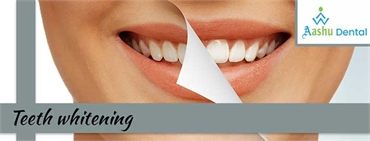 Maintain the Beauty of Teeth with Porcelain Veneer Ahmedabad