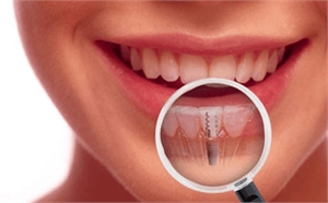 What Is The Dental Implant Treatment Everything You Need To Know