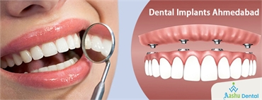 Dental Implants A Great Treatment to Replace the Missing Teeth