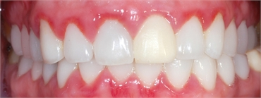 GUM DISEASE CAUSES SIGNS SYMPTOMS AND TREATMENTS