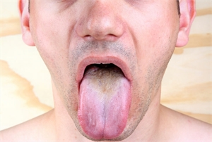 tongue color and texture