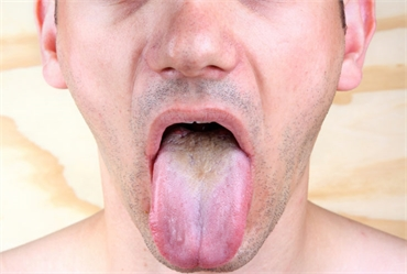What Does it Mean When Your Tongue is