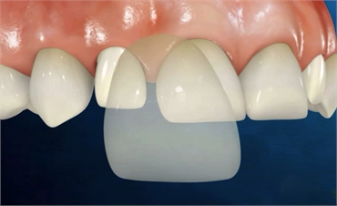 Multiply Your Confidence With Porcelain Veneers