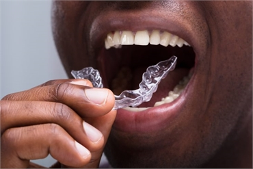 5 Facts You Should Know About Invisalign Treatment