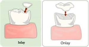 Difference Between And Inlay And An Onlay