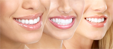 Your Dental Benefits What You Should Know