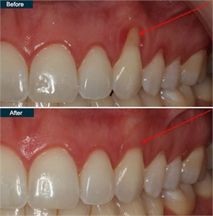 RECEDING GUMS TREATMENT IN NYC