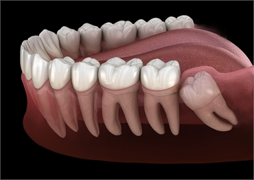 Why Houston Residents Should Get Their Wisdom Teeth Removed