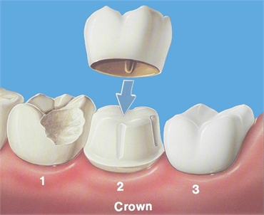 The different types of dental crowns