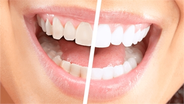 Simple Hacks To Whiten Your Teeth