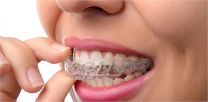 Going for Invisalign. Check These Facts before You Get One