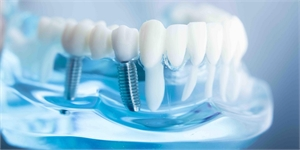 A Complete Guide To Help You Know About Dental Implant Surgery
