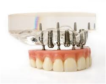 What does getting dental implants involve
