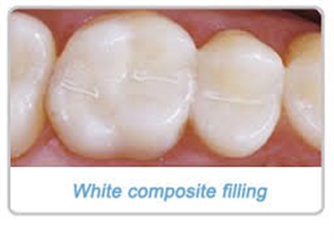 What are white colored fillings