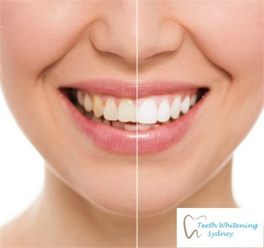 Sydney Teeth Whitening