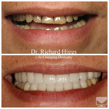 Trung Dental Implants Veneers and Crowns