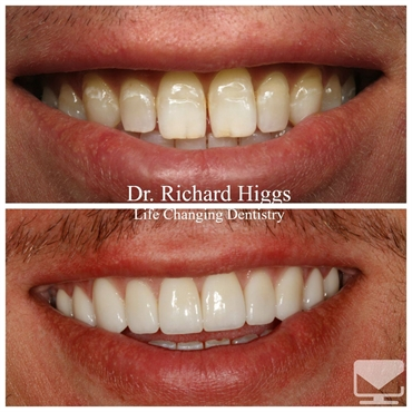 Eric 10 Unit Veneers Laser Whitening