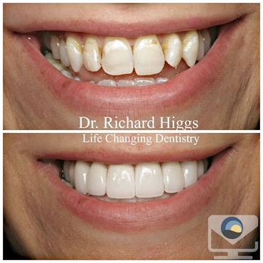 Heather Upper and Lower Veneers