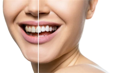 Look and Feel Good with These Easy Dental Hacks