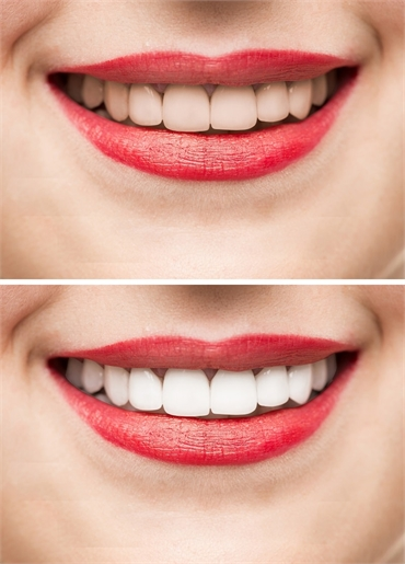 Cosmetic Dentistry Albuquerque NM