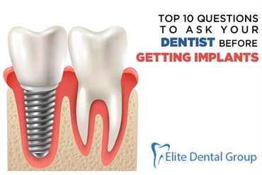 Top 10 Questions to Ask Your Dentist Before Getting Implants