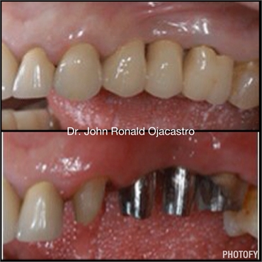 bridge after dental implants