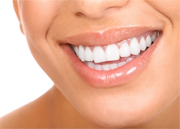 Teeth-Whitening-in-Sydney