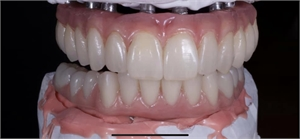 Shama Dental Lab