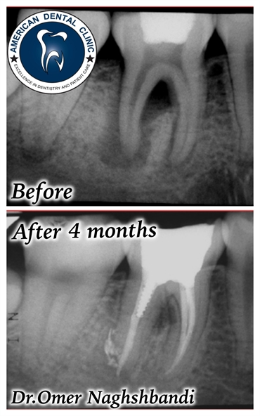 Root canal treatment by Dr.Omer naghshbandi