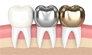 The Different Types of Dental Crowns You Should Know About