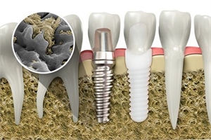 What is Osseointegration