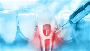Laser Assisted Endodontic Treatment for Root Canals