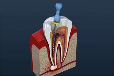 Root Canal Treatment and Cost