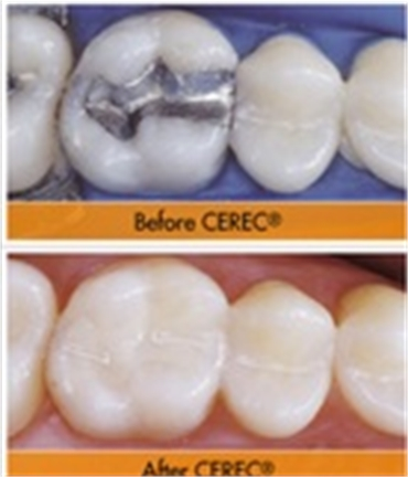Ceramic Dentistry