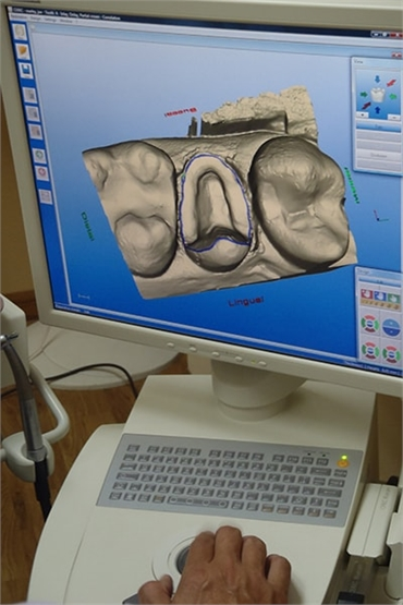 Cerec Machine at Longmont CO dentist Artistic Smiles