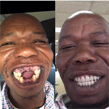 Full denture implant