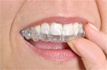 5 Reasons Many Prefer Clear Aligners Over Traditional Braces