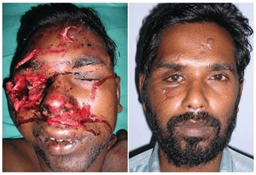Trauma Surgery  Facial Fracture Treatment In India  Richardsons Dental