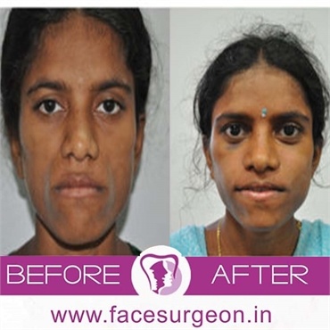 Cosmetic Procedures Cosmetic Rhinoplasty Treatment In India