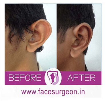 Otoplasty Surgery Ear Correction Surgery In India Dr. Sunil Richardson