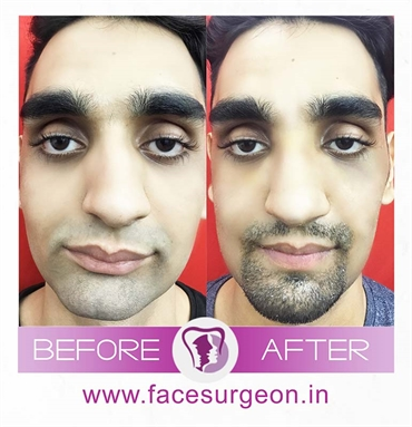 Orthognathic Jaw Surgery In India Richardsons Dental and Craniofacial Hospital