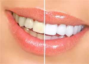 What makes Professional Teeth Whitening Important