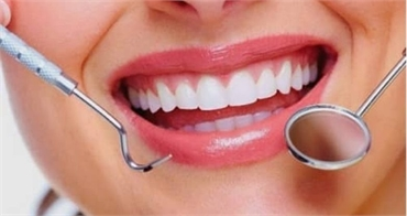 Affordable Professional Teeth Whitening